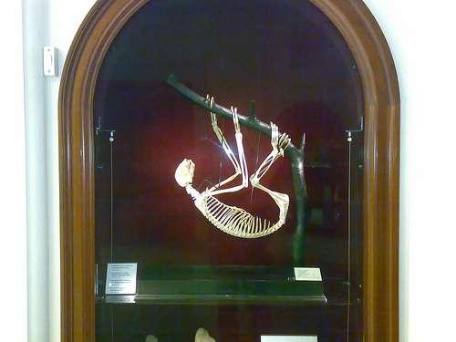 El Museo del Bisturí, en Edimburgo